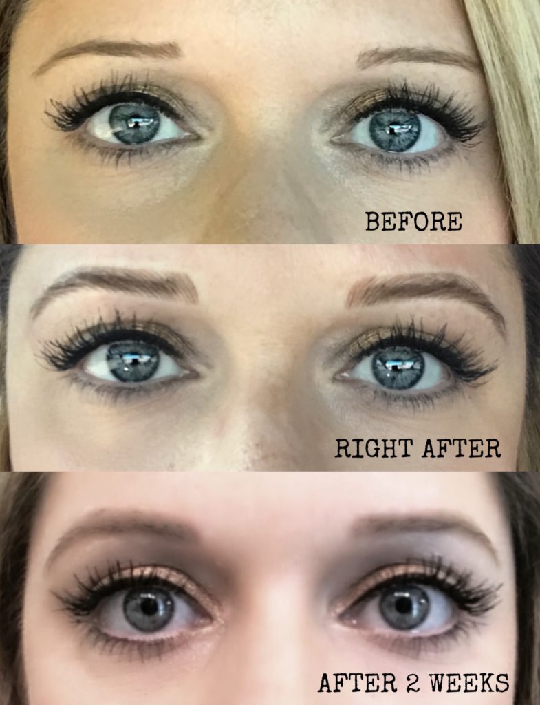 Eyebrow Microblading: My Personal Experience (Part 1)