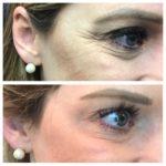 Beauty Diaries: Botox | Dysport